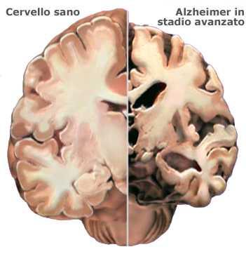 Aducanumab, luci e ombre per il primo farmaco per l'Alzheimer