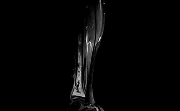 Osteomielite pediatrica: indicazioni per curare infezione ossa